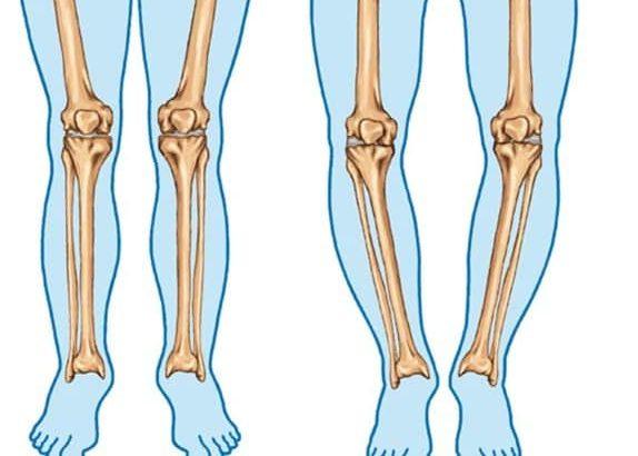 علل پرانتزی شدن پاها چیست